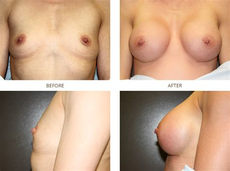 Breast reconstruction before after dr prichard jpg 2250x1675