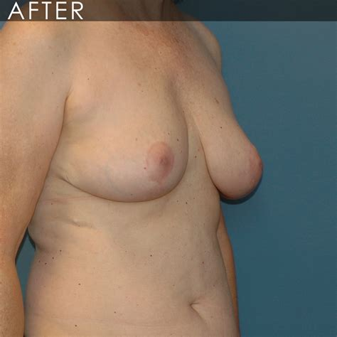 Breast lift cleveland clinic jpg 1000x1000
